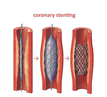 Coronary Stenting   open heart surgery   Hyderabad